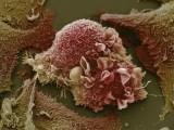 你从未看到过的人体图片  人体细胞图